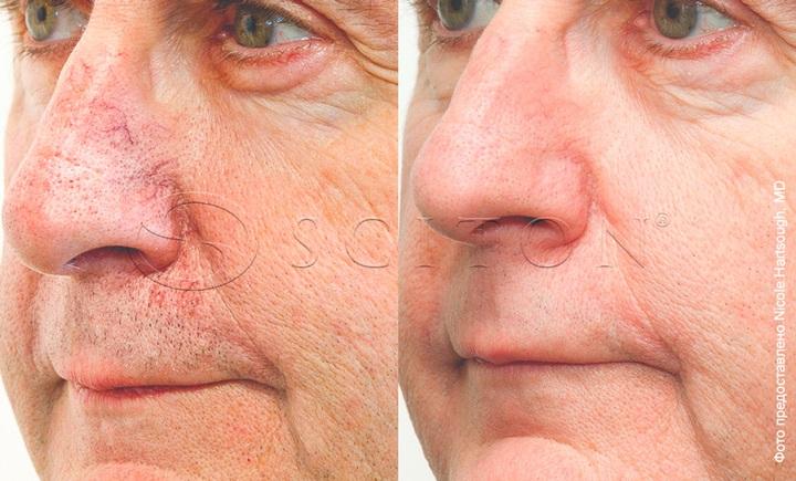 Купероз на носу фото до и после процедур BBL Sciton
