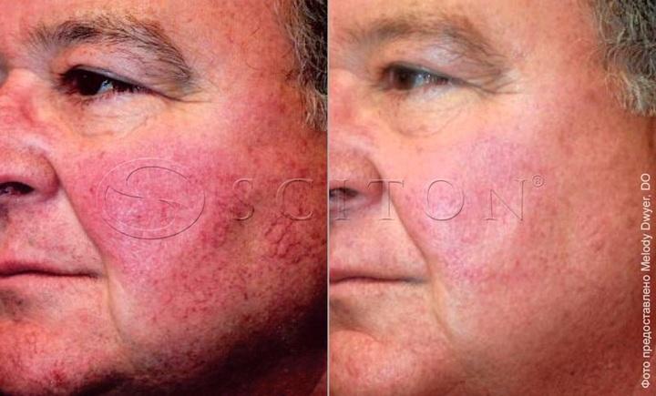 Купероз на лице фото до и после процедур BBL Sciton