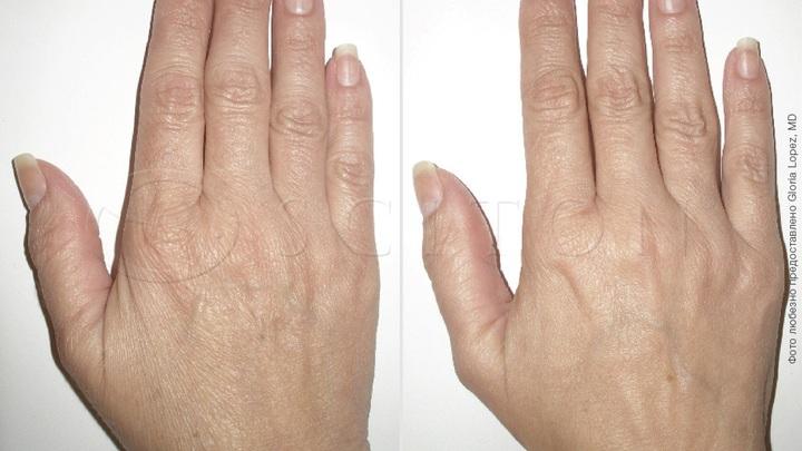 Лифтинг кожи рук SkinTyte II системой BBL Sciton