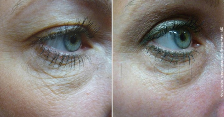 Лифтинг кожи вокруг глаз SkinTyte II системой BBL Sciton