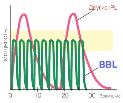 Прямоугольный импульс BBL