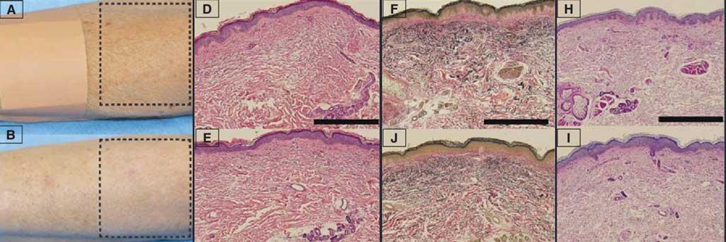 Фотоомоложение BBL гистология кожи