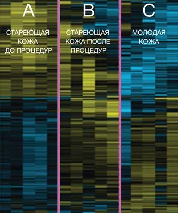 Фотоомоложение BBL клинические исследования - картирование генов