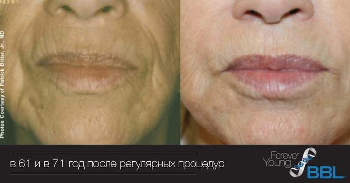 Пациентка в 61 и в 71 год после регулярных процедур BBL