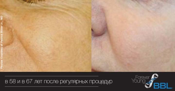 Кожа в 58 и 67 лет