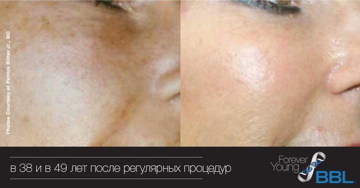 Фотоомоложение BBL до и после процедур в течение 11 лет