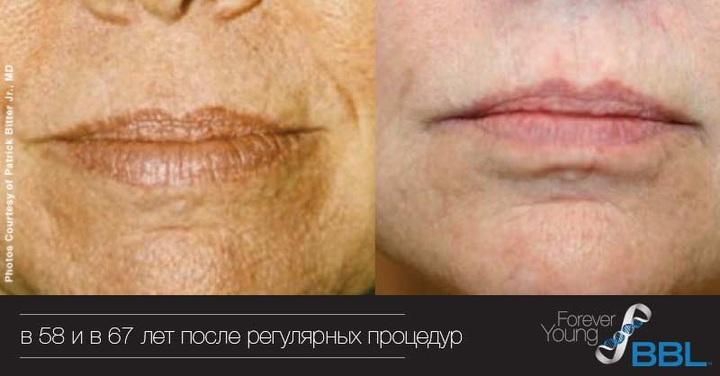 Пациентка в 58 и в 67 лет после регулярных процедур BBL