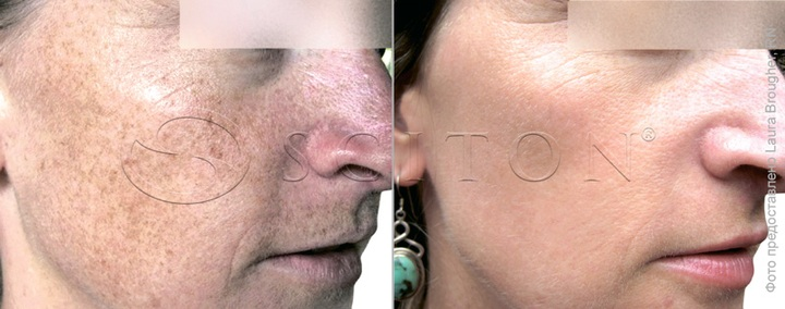 Фотостарение кожи - пигментация лица