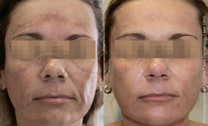 Мелазма фото до и после процедуры BBL™